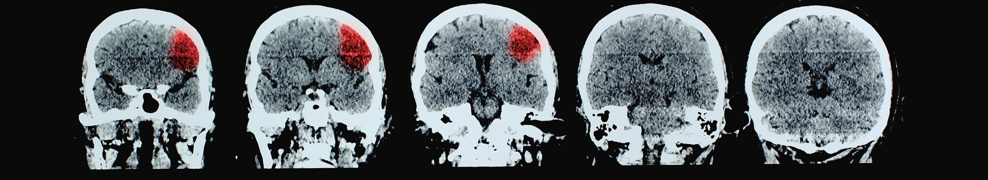 Brain CT showing stroke
